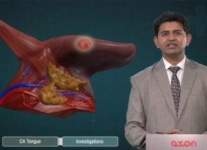 AXON-Carcinoma-Tongue